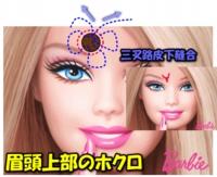 201408image8