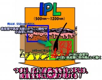image130305