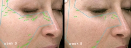 before_after035B15D