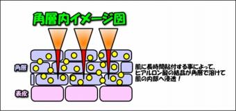 image1130
