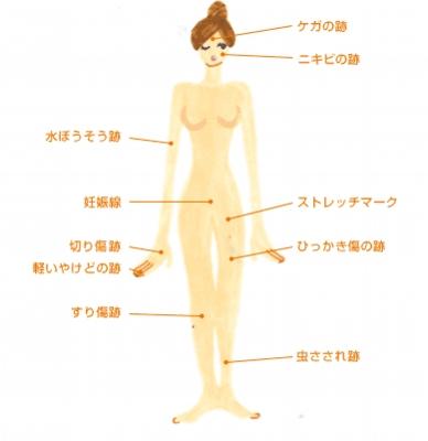 body5B15D